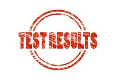 Test results red rubber stamp Royalty Free Stock Image