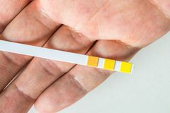 Test strip for urine analysis in hand Royalty Free Stock Image