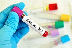Blood sample for Norovirus test. Test tube with blood sample for Norovirus test Stock Photography