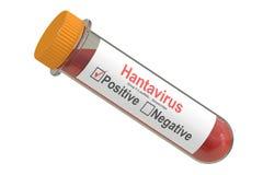 Test tube with blood sample positive hantavirus, 3D rendering Royalty Free Stock Image