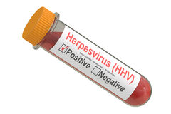 Test tube with blood sample positive with herpesvirus hhv virus, Royalty Free Stock Photo