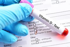 Vitamin D test. Test tube with blood sample for vitamin D test stock photo