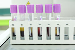 Test tube cbc lab Royalty Free Stock Photography