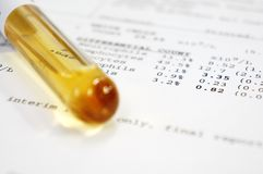 Test tube with results Royalty Free Stock Photos