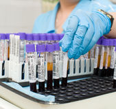 Test tubes with blood Stock Image