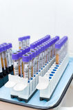 Test tubes with donor blood. Many test tubes with donor blood being tested, copy space stock photography