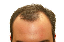 Testa Balding Fotografia Stock Libera da Diritti