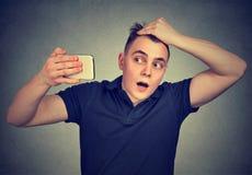 Testa colpita di sensibilità dell'uomo, sorpresa è capelli perdenti Immagini Stock