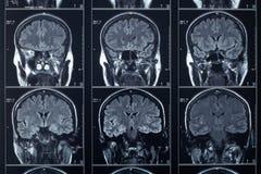 Testa dei raggi x e cervello, esame medico Fotografia Stock
