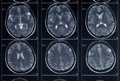 Testa dei raggi x e radiografia del cervello Fotografie Stock