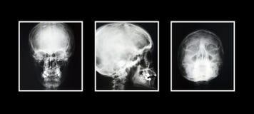 Testa dei raggi X Fotografia Stock Libera da Diritti