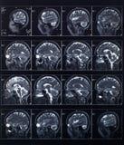 Testa dei raggi x e cervello, esame medico Immagini Stock Libere da Diritti
