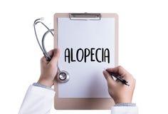 Testa del maschio di ALOPECIA, medicina TR calvo del haircare di perdita dell'aria di alopecia Fotografie Stock