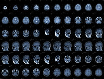 Testa MRI Immagine Stock Libera da Diritti