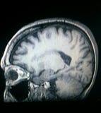 Testa MRI Fotografie Stock