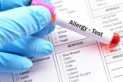 Teste da alergia de alimento fotografia de stock