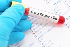 Teste da hormona de crescimento Fotos de Stock Royalty Free