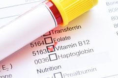 Teste da vitamina B12 fotografia de stock royalty free