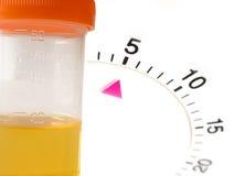 Teste de amostra programado da urina fotografia de stock