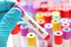 Teste de HbA1c fotografia de stock