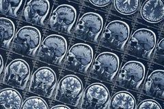Teste do tomografia do crânio da cabeça humana da neurologia da varredura ou do raio X de cérebro de MRI fotos de stock