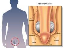 Testicular nowotwór Obrazy Stock