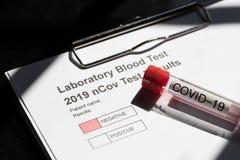 Free Testing Kit For NCov, Covid - 19, Corona Virus Testing Tube In Laboratory Stock Photography - 176482822