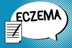 Testo della scrittura che scrive eczema Condizione della pelle di significato di concetto segnata dalla dermatite atopica che pru royalty illustrazione gratis