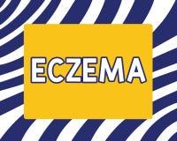 Testo della scrittura che scrive eczema Condizione della pelle di significato di concetto segnata dalla dermatite atopica che pru illustrazione di stock