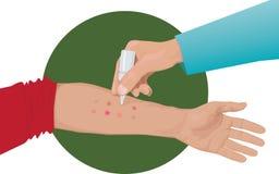 Tests cutanés d'allergie en main photo libre de droits