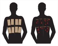Tests cutanés de correction d'allergie images stock