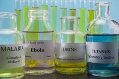 Tests voor Onderzoek van Malaria, ebola, urine en tetanus royalty-vrije stock foto