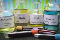 Tests voor Onderzoek van Malaria, ebola, urine en tetanus stock afbeelding