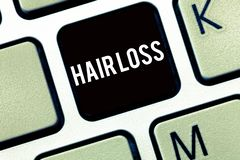Text sign showing Hair Loss. Conceptual photo Loss of huanalysis hair from the head or any part of the body Balding.  royalty free stock image