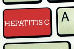 Text sign showing Hepatitis C. Conceptual photo Inflammation of the liver due to a viral infection Liver disease.  royalty free stock photos