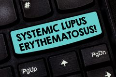 Text sign showing Systemic Lupus Erythematosus. Conceptual photo immune system of the body attack healthy tissue. Keyboard key Intention to create computer royalty free stock photo