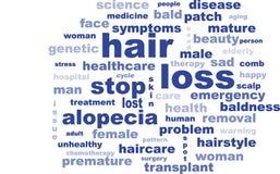 Texto de la pérdida de pelo de la calvicie de la alopecia de las palabras Fotos de archivo