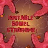 Texttecken som visar syndrom för retlig tarm Begreppsmässigt gälla för fotooordning som är buk- smärtar, och diarrésjöstjärnafoto vektor illustrationer