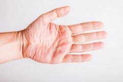 Textura da pele do sintoma da dermatite atópica da eczema Foto de Stock Royalty Free