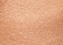 Texture of the epidermis of human skin with flakes and cracked. The texture of the epidermis of human skin with flakes and cracked particles closeup stock photo