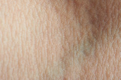 Texture of skin with vein Royalty Free Stock Photography
