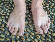 Textured cement  paved with stones and Foot Massage.  Stock Photo