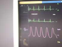 Théâtre d'opération d'électrocardiogramme Photographie stock libre de droits