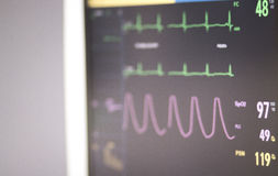 Théâtre d'opération d'électrocardiogramme Image stock