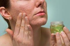 Thérapie d'acné Photos stock
