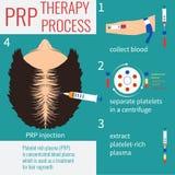 Thérapie d'injection de PRP Photo libre de droits