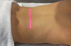 Thérapie de laser Images libres de droits