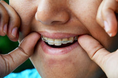Thai woman putting Retainer fashion. At tooth royalty free stock photos