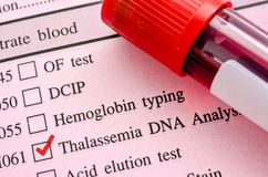 Thalassemia DNA test. Red mark in screening form request for thalassemia DNA test with Blood sample in tube Stock Photography