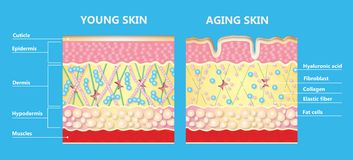 Free The Diagram Of Younger Skin And Aging Skin Stock Photo - 139650470